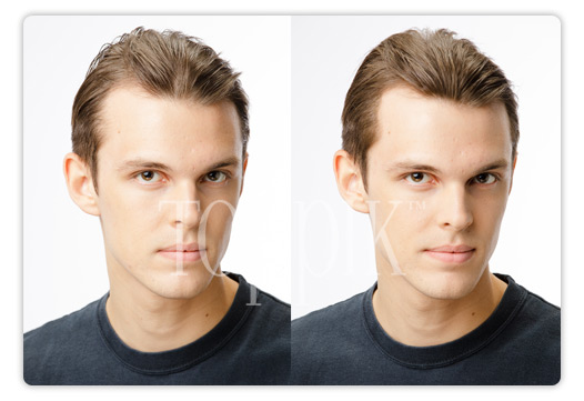 Toppik ennen ja jälkeen